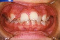 上顎前突 出っ歯(正面)-治療前