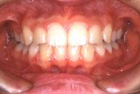 上顎前突 出っ歯(正面)-治療後
