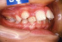 上顎前突 出っ歯(右)-治療前