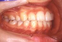 上顎前突 出っ歯(右)-治療後