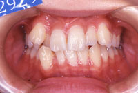八重歯・叢生でこぼこの歯並び(正面)-治療前