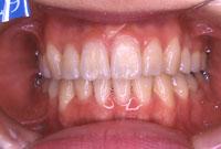 八重歯・叢生でこぼこの歯並び(正面)-治療後