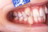 八重歯・叢生でこぼこの歯並び(左)-治療前