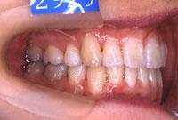 八重歯・叢生でこぼこの歯並び(左)-治療後