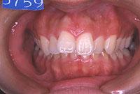 上顎前突(正面)-治療前