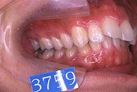 上顎前突(右)-治療前