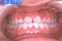 下顎前突(正面)-治療前