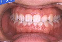 下顎前突(正面)-治療後